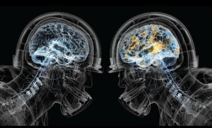 brains-in-helmets