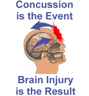 Concussion is the cause. mild TBI is the effect