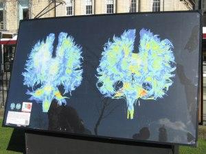 concussion-imaging