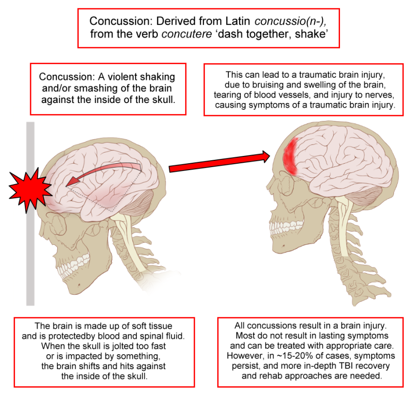 Concussion_Anatomy_2016