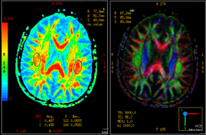 Side-by-side MRI imaging