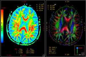 Side-by-side MRI imaging