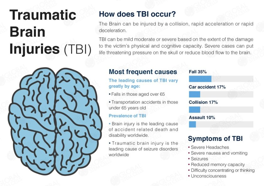 brain injury infographic
